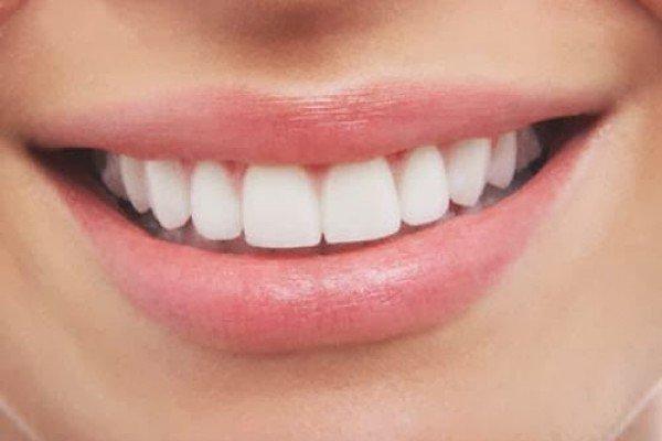 Cómo tener dientes perfectos
