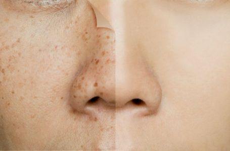Elimina las molestas manchas de la cara