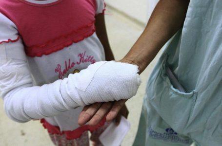 Fundaniquem atendió 370 infantes quemados durante el 2020