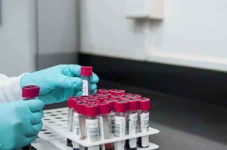 Hondureños deben estar alerta a la enfermedad del «hongo negro» relacionada al COVID