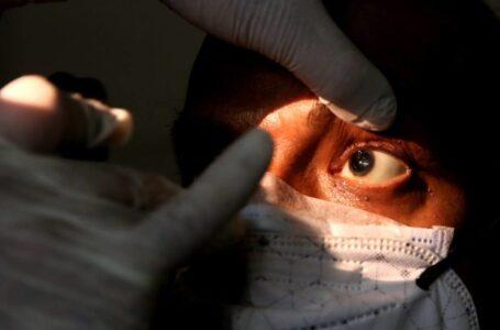 """Solo un 2% de población infectada por Covid-19 podría contraer el """"hongo negro"""""""